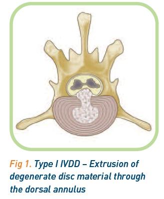 Type 1 IVDD