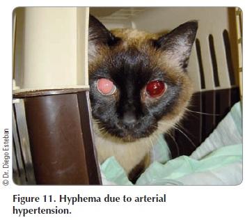 Fig 11 - Hyphema due to arterial hypertension