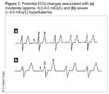 fig 1 - ECG